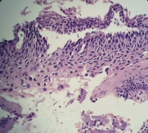 Moderate to Severe Squamous Dysplasia (HSIL) of Cervical Tissue