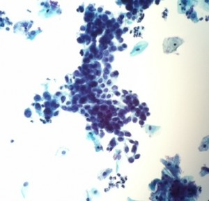 Carcinoma in-situ by Cytology of Cervix/Pap smear