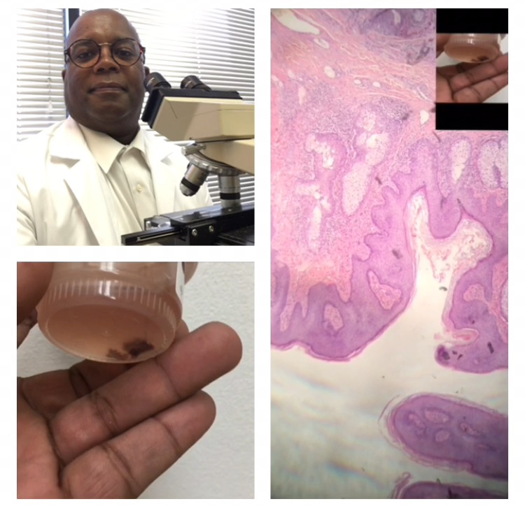 SKIN BIOPSY ONSITE Interpreted by Dr. Gates