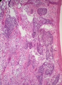 Frozen Section Basal Cell Carcinoma, TELEMEDICINE