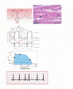 Heart, Myocardial Cell Physiology; For Every P-wave, a QRS complex should follow; P wave to P-wave are spaced apart by approximately 1.2 to 2.0 seconds during a sinus rhythm.