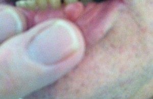 Mucus Cyst Diagnosed by Clinical Image