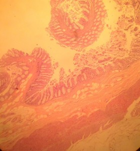 Normal Colon Histology